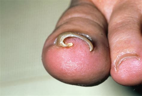 warts on cuticles picture 9