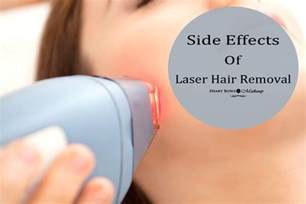 laser hair removal cost picture 5