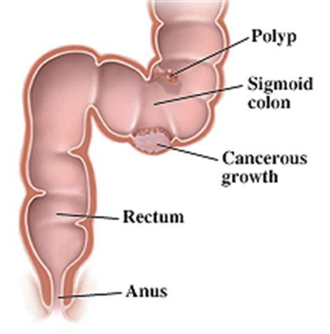 small colon polyp picture 4