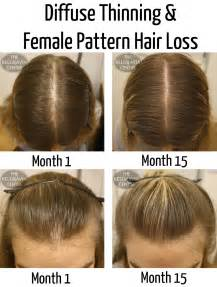 hormonal hair loss will it grow back picture 10