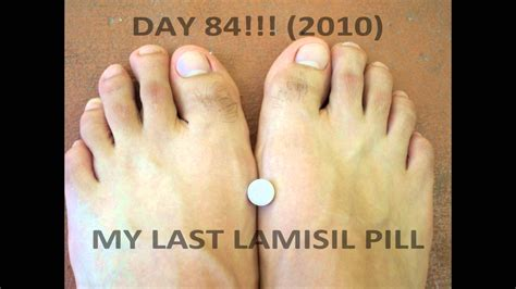 toenail treatment safety with lamisil for fungus picture 8