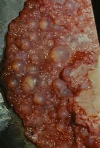 cysts endometrium liver picture 1