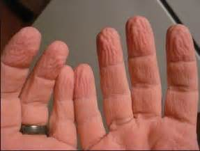 thyroid problems and tingling hands picture 6