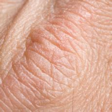 itching with white flakes on skin picture 8