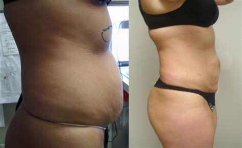 lipo 6 black fat burner before and after picture 9