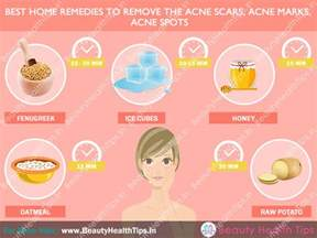 homemade thing to remove post acne marks picture 10