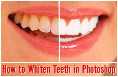 how to whiten teeth picture 6