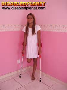 amputee peg leg pictures picture 6