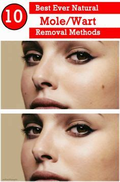 wart removal methods picture 1