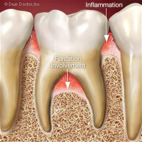 boneloss in teeth picture 2
