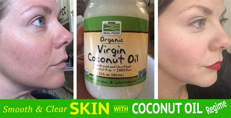 coconut oil smooth skin picture 2