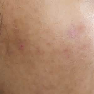 vilante acne picture 2