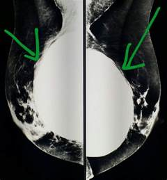 mammogram after breast augmentation picture 6