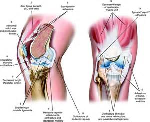 cyclops lesion knee joint picture 14