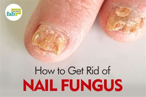 how to get rid of fungus toenails picture 8