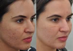face kasaa acne nikalta ha picture 2