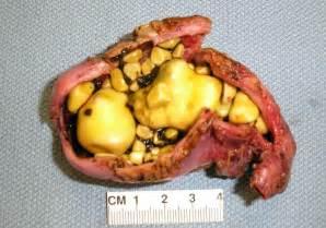 gamot sa liver fatty picture 2