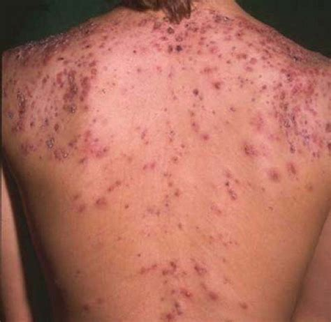 acne on back picture 13