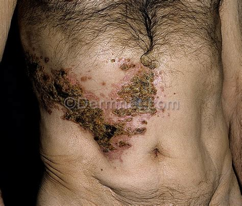herpes on breast area picture 9