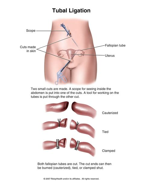 reverse tubal ligation with herbs picture 1