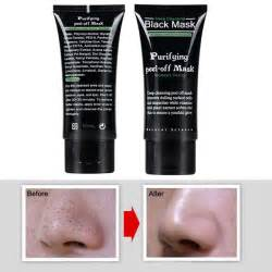 ichthammol ointment for blackhead removal picture 2