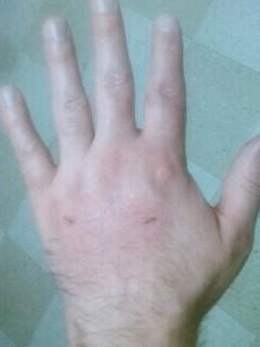 cat bite skin infections picture 13