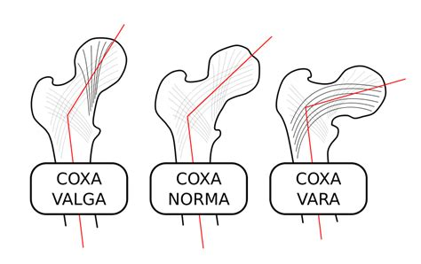 coxa vulga of hip joint picture 1