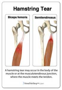 hamstring muscle injuries picture 5