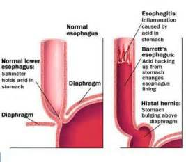 esophageal bacterial infections what are the signs picture 12