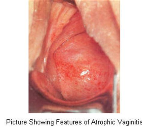 dry skin around vaginal area picture 3