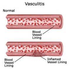 vasculitis colon pain picture 3