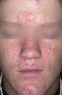 cks acne picture 7