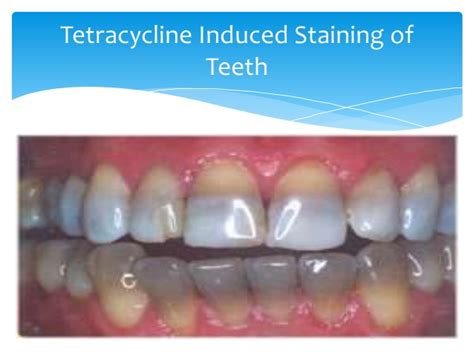 antibiotic side effects discoloring teeth picture 18