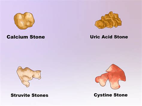 bladder stones and uric acid picture 6