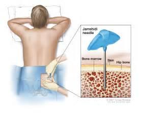 natural remedy for bone marrow supression picture 18
