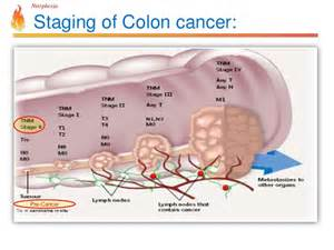 Colon cancer stages picture 3