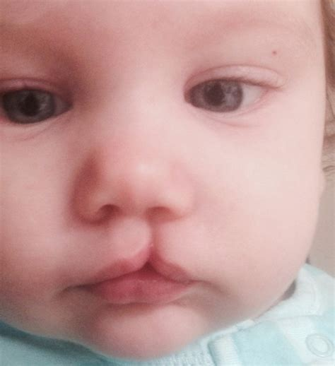 cleft lip cleft palate picture 9