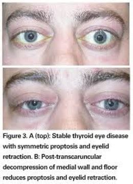 hypothyroid and vision picture 1
