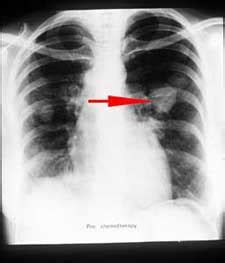 cancer from thyroid treatment xray picture 2