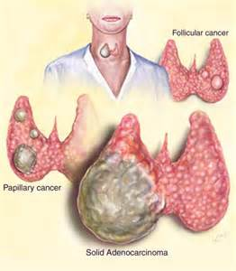 cancer of the thyroid picture 3