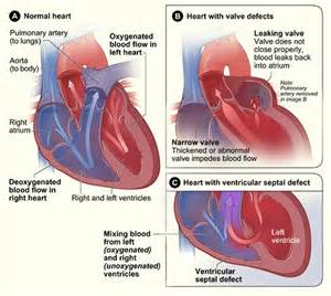 causes of decreased blood flow to babies in picture 6