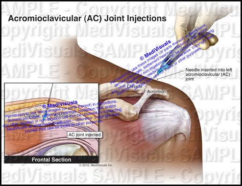 arthritis joint injections picture 13