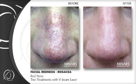 laser treatment fungus toe in florida picture 15
