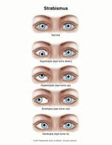 double vision eye muscle surgery picture 2