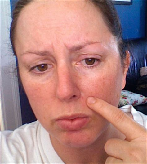 menopausal acne picture 2