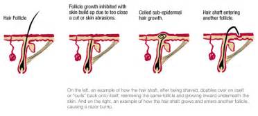 Waxing pubic hair stops growing picture 7
