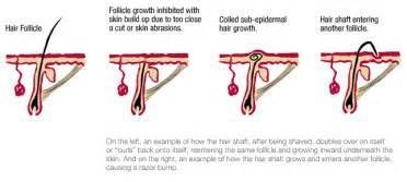 penis curve reduction castor oil iodine picture 6