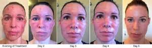 recovery time for fractional deka skin resurfacing picture 10