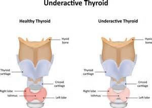 natural ways to cure over active thyroid in picture 6