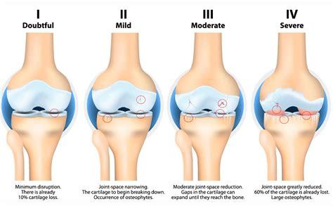 elliptical trainer hip joint pain picture 3